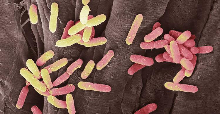 infection-4.jpg