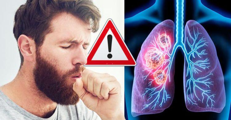 lung-4.jpg
