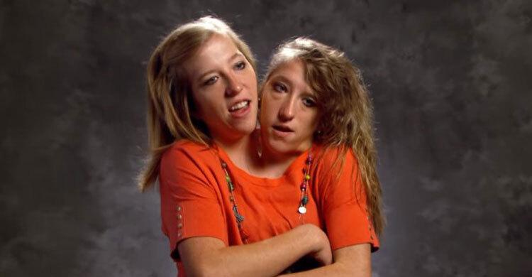 একই শরীর নিয়ে জীবন কাটাচ্ছেন দুই বোন | Abigail & Brittany Hensel  | ২৬ সেপ্টেম্বর ২০২১