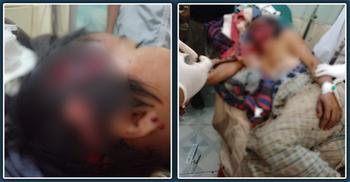 ভাল্লুকের আক্রমণে আহত গ্রামপ্রধান, হেলিকপ্টারে গেলেন হাসপাতালে