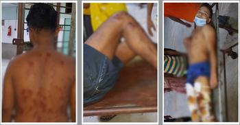 টঙ্গীতে পোশাককর্মীদের ঈদ ছুটি নিয়ে উত্তেজনা, ছররা গুলিতে আহত ৯