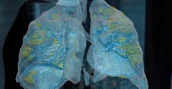 মৃত করোনা রোগীর ফুসফুস দেখে বিস্মিত চিকিৎসকরা