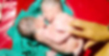 পটুয়াখালীতে 'অভিন্ন পেটের' যমজ শিশুর জন্ম, নেই মলদ্বার